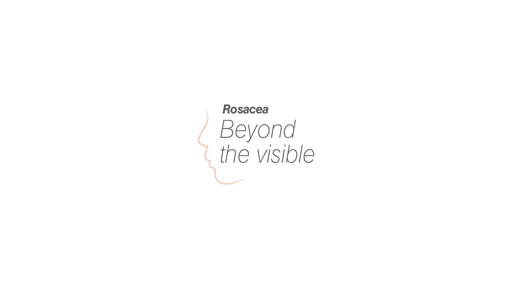 logo-rosacea-2-white