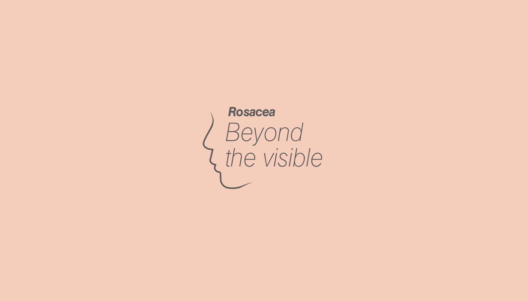 logo-rosacea-4-sammon